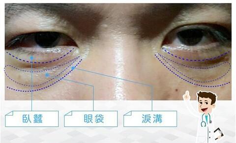 眼周老化-臥蠶手術-眼袋手術-填補淚溝